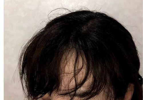 前髪の内側はチリチリした髪の毛