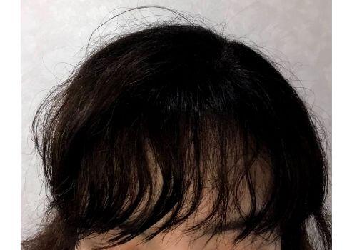 クセが出てきた前髪